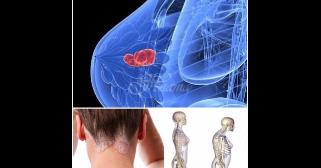 Опасните симптоми на недостиг на витамин D - скритата..